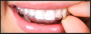 This googled image is nowhere near accurate. It is not possible to look happy and non-slobbery with a retainer in.